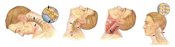Лечение хлыстовой травмы