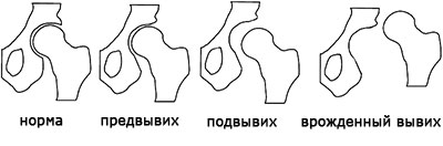 Классификация дисплазии тазобедренного сустава