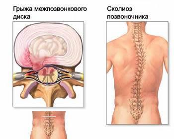 Сильно болит спина и ноги