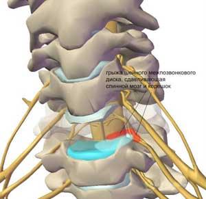 Резкие боли в правом боку и в спине