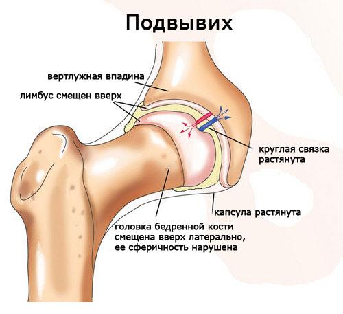 Подвывих при дисплазии тазобедренного <i>остеопат лечение суставов</i> сустава