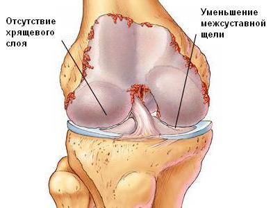 Лечение артроза коленного сустава пчёлоужаливанием бальзам здоровые суставы в украине