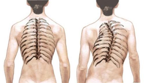 Остеопатия шейного отдела позвоночника что это такое 27