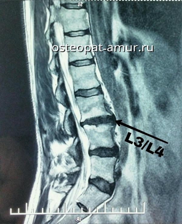 Протрузия межпозвонковых дисков поясничного отдела болит нога