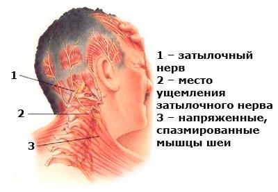 Грыжа шейного отдела позвоночника симптомы 4 мм