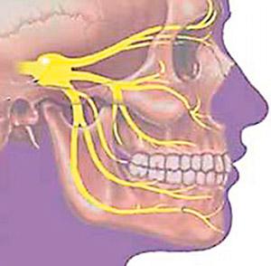 остеохондроз шейного отдела и тройничный нерв считаю